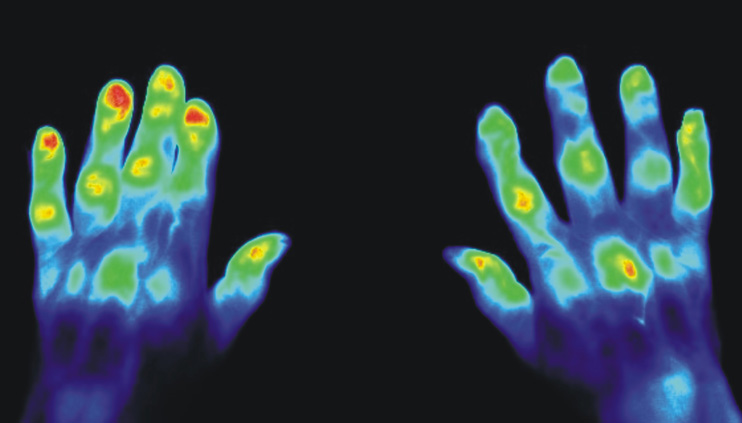 A medical picture of two hands with the aid of photoluminescent substances.